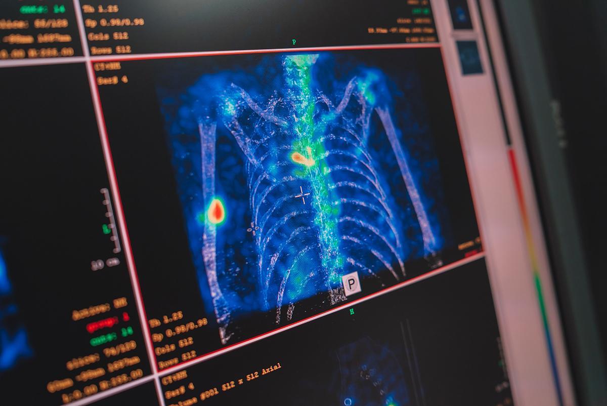 В Кировском центре онкологии совершенствуются методы радионуклидной диагностики
